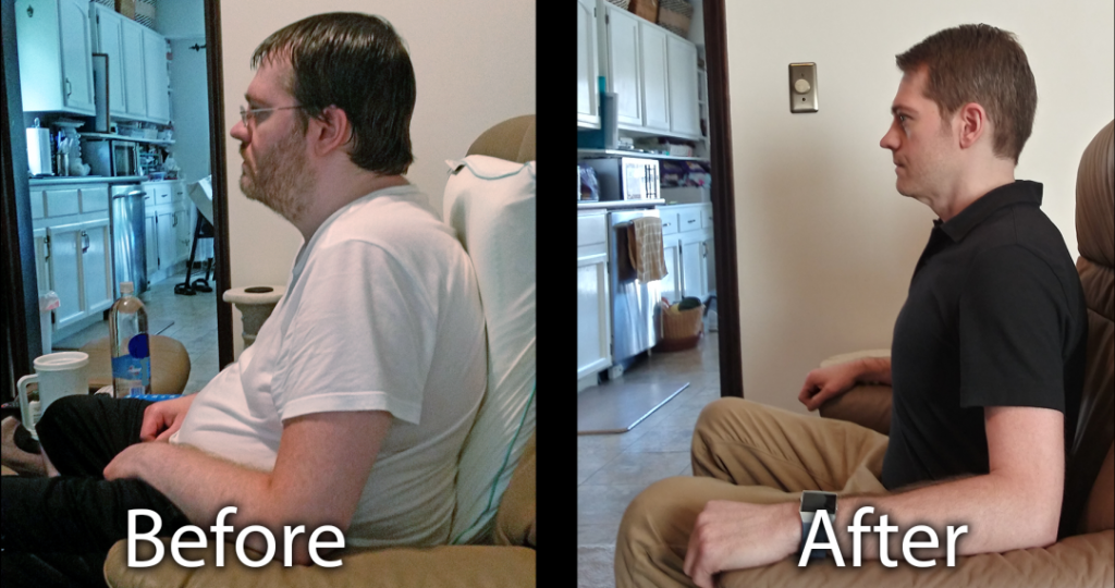 Christopher Blakeslee Functional Health Coach Before After 2