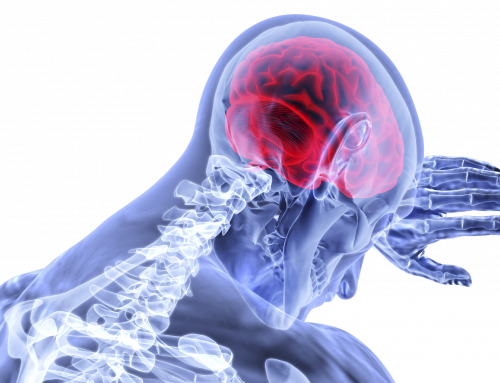An Introduction to Pain Neuroscience